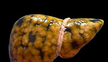 Esteatose Hepática: Sintomas, Causas e Tratamento. Imagem: (Divulgação)