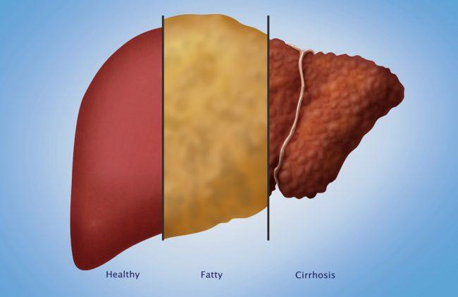 Exame gordura no figado