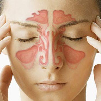 Sinusite. Imagem: (Divulgação)