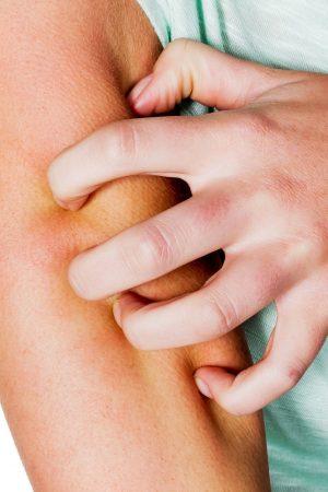 Dermatite Atópica. Imagem: (Divulgação)
