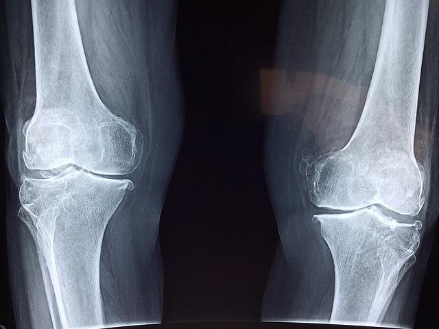 Benefícios da vitamina K para os ossos