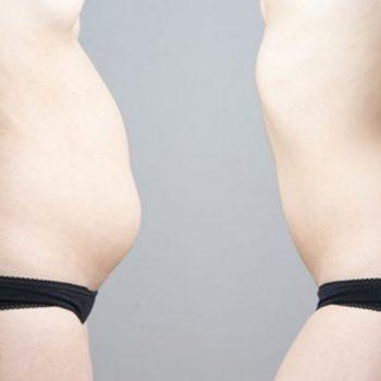 inchaço abdominal2