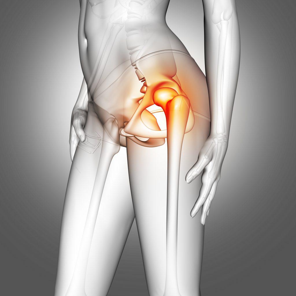 Figura apontando quadril dolorido devido a osteoporose