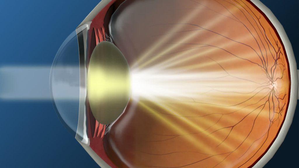 catarata é uma camada densa e turva que se forma na lente do olho