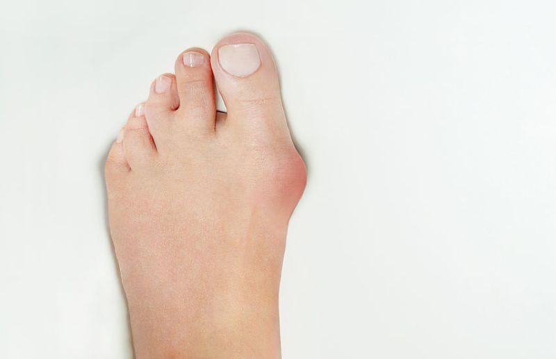 Joanete é uma deformidade óssea da articulação