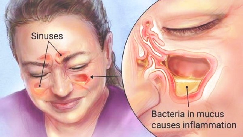 Como curar sinusite?