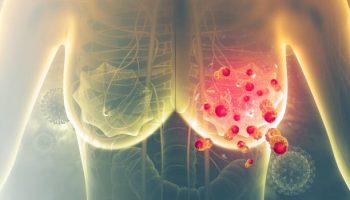 Breast cancer. 3d illustration