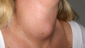 sintomas hipertireoidismo